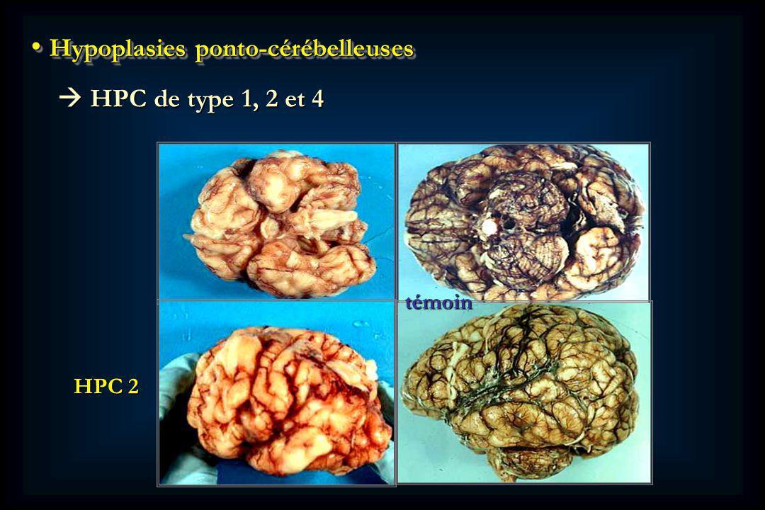Hypoplasies ponto-cérébelleuses Hypoplasies ponto-cérébelleuses HPC de type 1, 2 et 4 HPC de type 1, 2 et 4 HPC 2 témoin