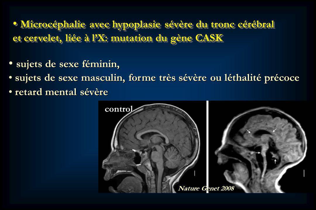 Microcéphalie avec hypoplasie sévère du tronc cérébral et cervelet, liée à lX: mutation du gène CASK Microcéphalie avec hypoplasie sévère du tronc cérébral et cervelet, liée à lX: mutation du gène CASK control Nature Genet 2008 sujets de sexe féminin, sujets de sexe féminin, sujets de sexe masculin, forme très sévère ou léthalité précoce sujets de sexe masculin, forme très sévère ou léthalité précoce retard mental sévère retard mental sévère