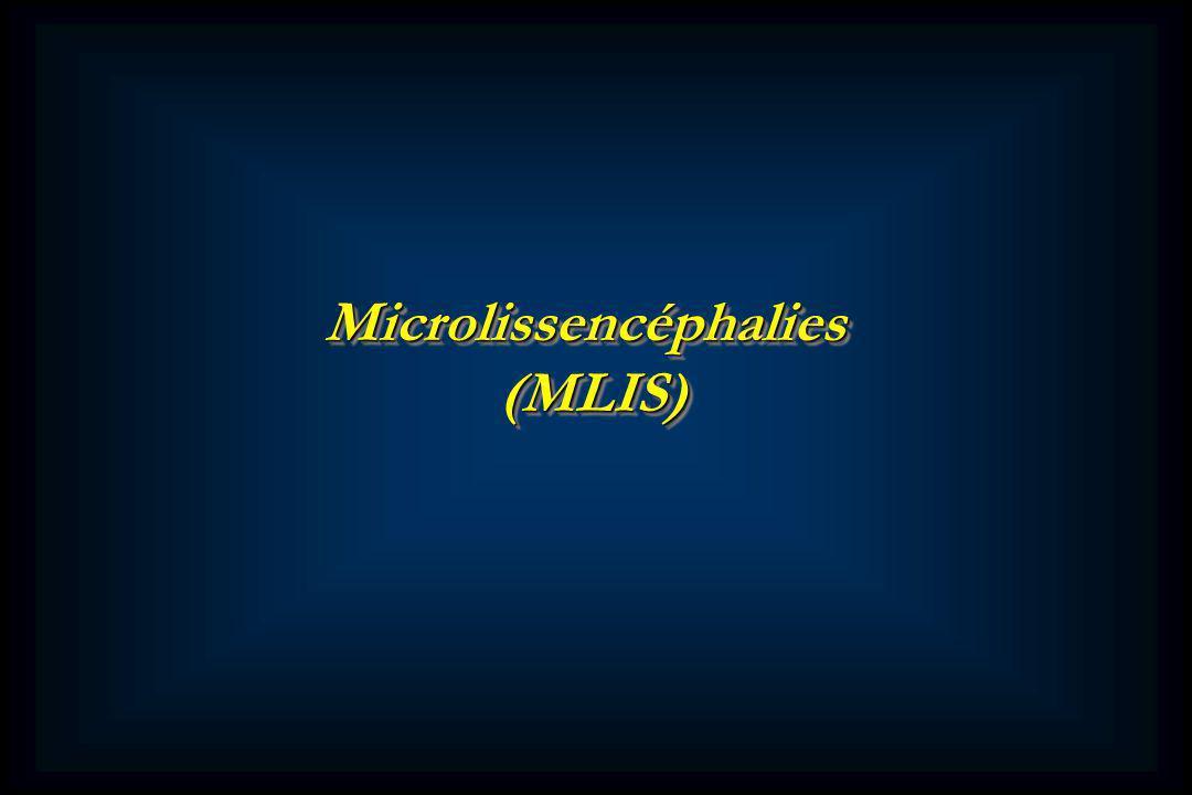 Microlissencéphalies(MLIS)Microlissencéphalies(MLIS)