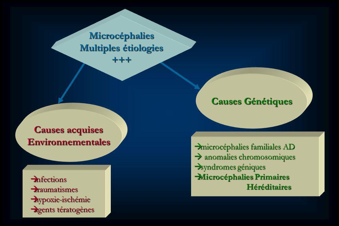 Causes Génétiques microcéphalies familiales AD microcéphalies familiales AD anomalies chromosomiques anomalies chromosomiques syndromes géniques syndromes géniques Microcéphalies Primaires Microcéphalies Primaires Héréditaires Héréditaires Causes acquises Environnementales infections infections traumatismes traumatismes hypoxie-ischémie hypoxie-ischémie agents tératogènes agents tératogènes Microcéphalies Multiples étiologies +++