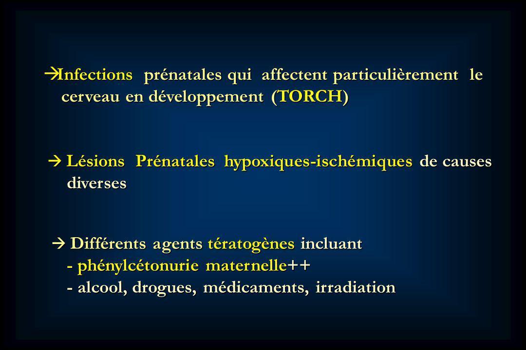 Infections prénatales qui affectent particulièrement le Infections prénatales qui affectent particulièrement le cerveau en développement (TORCH) cerveau en développement (TORCH) Lésions Prénatales hypoxiques-ischémiques de causes Lésions Prénatales hypoxiques-ischémiques de causes diverses diverses Différents agents tératogènes incluant Différents agents tératogènes incluant - phénylcétonurie maternelle++ - phénylcétonurie maternelle++ - alcool, drogues, médicaments, irradiation - alcool, drogues, médicaments, irradiation