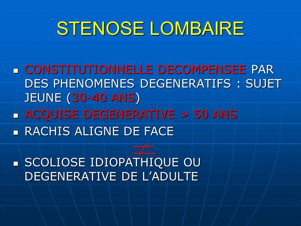 STENOSE LOMBAIRE CONSTITUTIONNELLE DECOMPENSEE PAR DES PHENOMENES DEGENERATIFS : SUJET JEUNE (30-40 ANS) CONSTITUTIONNELLE DECOMPENSEE PAR DES PHENOMENES DEGENERATIFS : SUJET JEUNE (30-40 ANS) ACQUISE DEGENERATIVE > 50 ANS ACQUISE DEGENERATIVE > 50 ANS RACHIS ALIGNE DE FACE RACHIS ALIGNE DE FACE SCOLIOSE IDIOPATHIQUE OU DEGENERATIVE DE LADULTE SCOLIOSE IDIOPATHIQUE OU DEGENERATIVE DE LADULTE