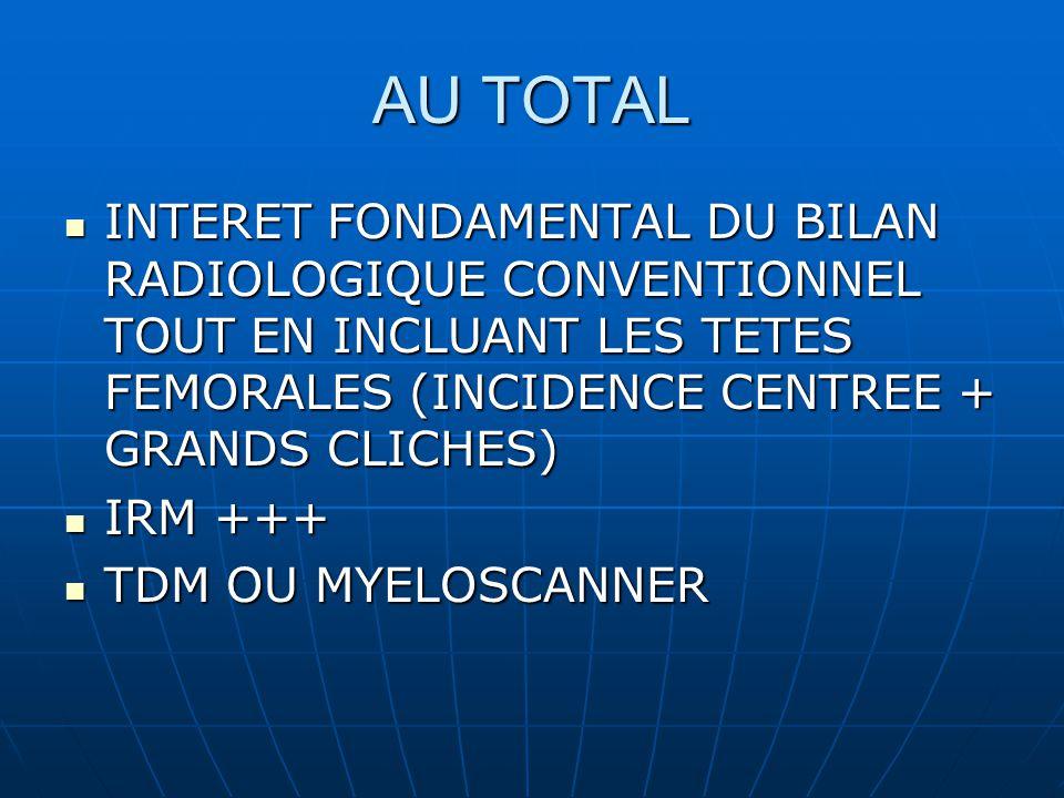 AU TOTAL INTERET FONDAMENTAL DU BILAN RADIOLOGIQUE CONVENTIONNEL TOUT EN INCLUANT LES TETES FEMORALES (INCIDENCE CENTREE + GRANDS CLICHES) INTERET FONDAMENTAL DU BILAN RADIOLOGIQUE CONVENTIONNEL TOUT EN INCLUANT LES TETES FEMORALES (INCIDENCE CENTREE + GRANDS CLICHES) IRM +++ IRM +++ TDM OU MYELOSCANNER TDM OU MYELOSCANNER