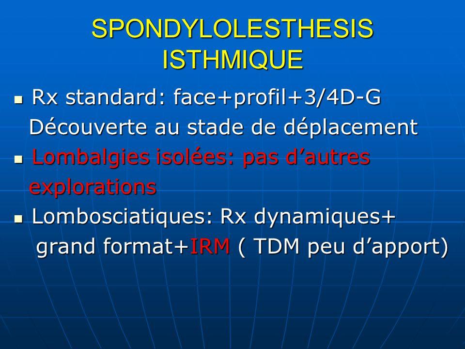 SPONDYLOLESTHESIS ISTHMIQUE Rx standard: face+profil+3/4D-G Rx standard: face+profil+3/4D-G Découverte au stade de déplacement Découverte au stade de