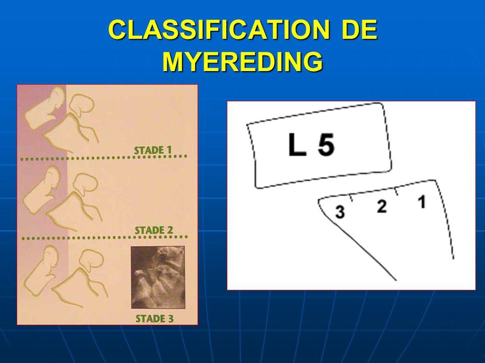 CLASSIFICATION DE MYEREDING