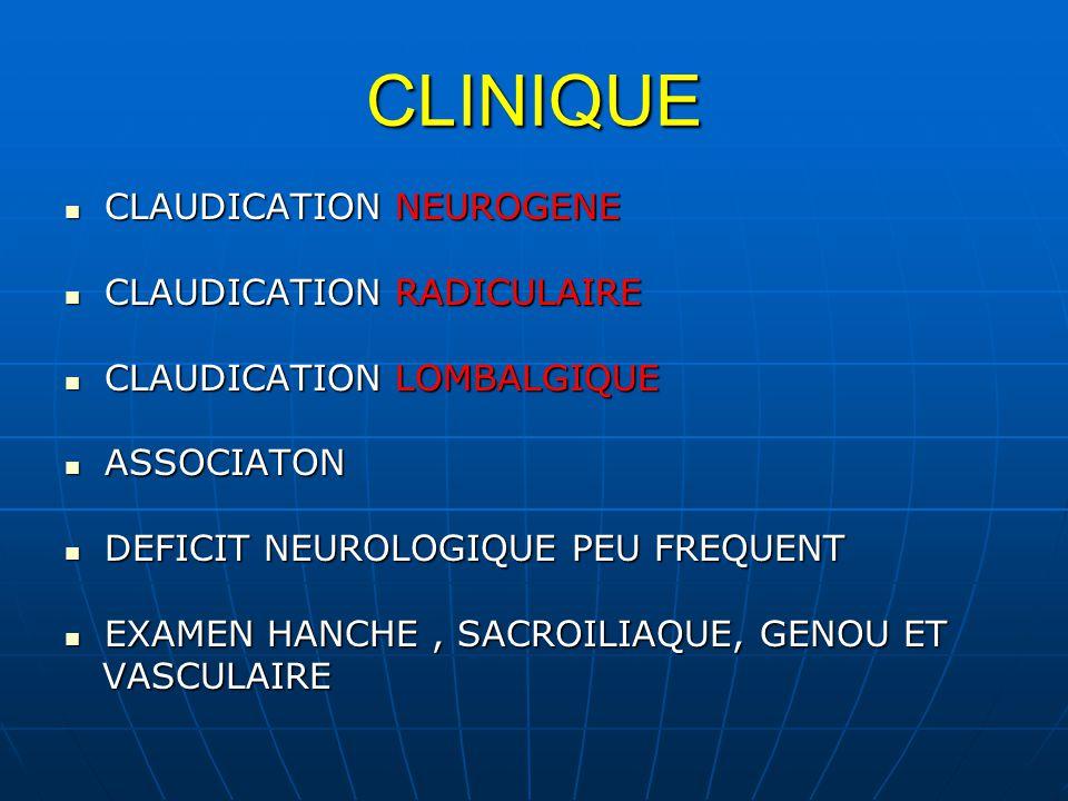 CLINIQUE CLAUDICATION NEUROGENE CLAUDICATION NEUROGENE CLAUDICATION RADICULAIRE CLAUDICATION RADICULAIRE CLAUDICATION LOMBALGIQUE CLAUDICATION LOMBALGIQUE ASSOCIATON ASSOCIATON DEFICIT NEUROLOGIQUE PEU FREQUENT DEFICIT NEUROLOGIQUE PEU FREQUENT EXAMEN HANCHE, SACROILIAQUE, GENOU ET EXAMEN HANCHE, SACROILIAQUE, GENOU ET VASCULAIRE VASCULAIRE