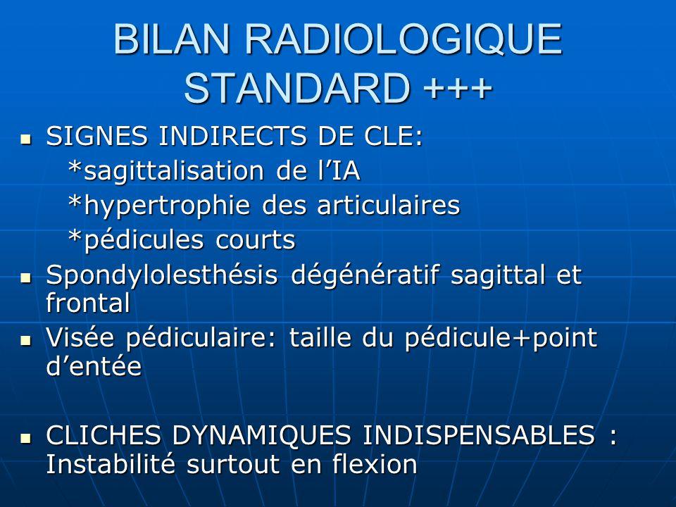 BILAN RADIOLOGIQUE STANDARD +++ SIGNES INDIRECTS DE CLE: SIGNES INDIRECTS DE CLE: *sagittalisation de lIA *sagittalisation de lIA *hypertrophie des articulaires *hypertrophie des articulaires *pédicules courts *pédicules courts Spondylolesthésis dégénératif sagittal et frontal Spondylolesthésis dégénératif sagittal et frontal Visée pédiculaire: taille du pédicule+point dentée Visée pédiculaire: taille du pédicule+point dentée CLICHES DYNAMIQUES INDISPENSABLES : Instabilité surtout en flexion CLICHES DYNAMIQUES INDISPENSABLES : Instabilité surtout en flexion