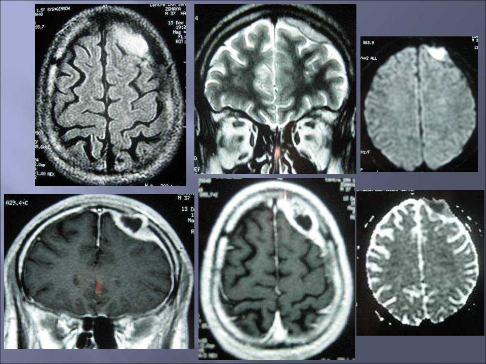 Problème diagnostique Signes infectieux inconstants Lésion à centre nécrotique Diagnostic différentiel: tumeur primitive ou secondaire, ischémie dans la phase subaigue, processus démyélinisant..