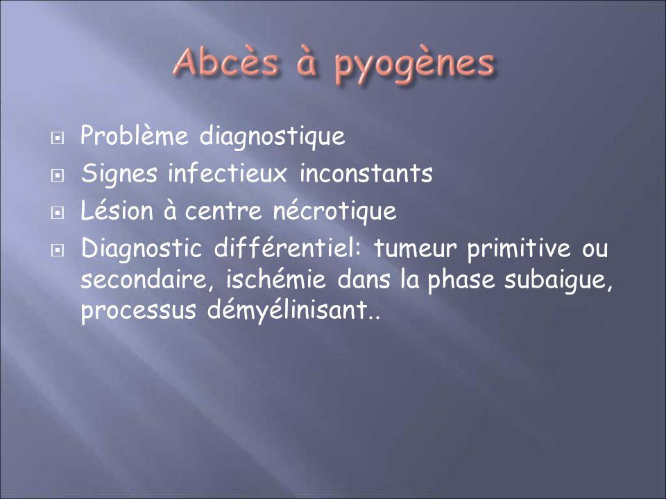 Problème diagnostique Signes infectieux inconstants Lésion à centre nécrotique Diagnostic différentiel: tumeur primitive ou secondaire, ischémie dans