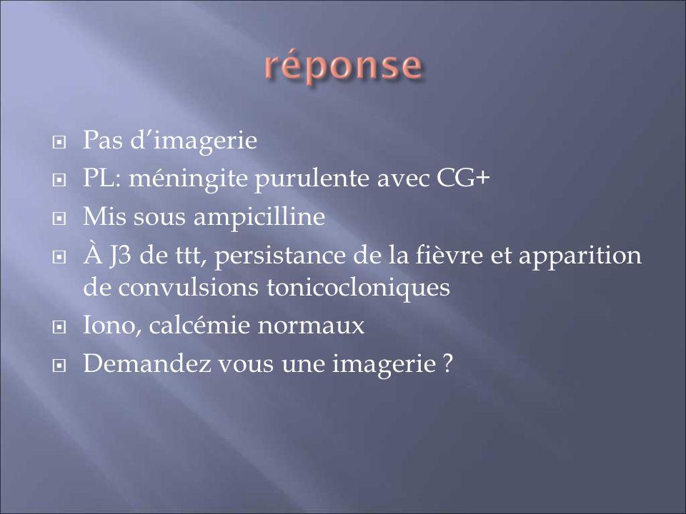 Pas dimagerie PL: méningite purulente avec CG+ Mis sous ampicilline À J3 de ttt, persistance de la fièvre et apparition de convulsions tonicocloniques Iono, calcémie normaux Demandez vous une imagerie ?