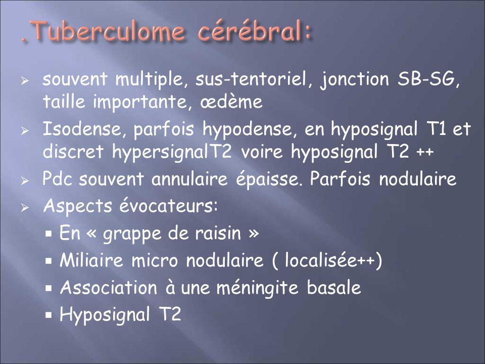 souvent multiple, sus-tentoriel, jonction SB-SG, taille importante, œdème Isodense, parfois hypodense, en hyposignal T1 et discret hypersignalT2 voire hyposignal T2 ++ Pdc souvent annulaire épaisse.