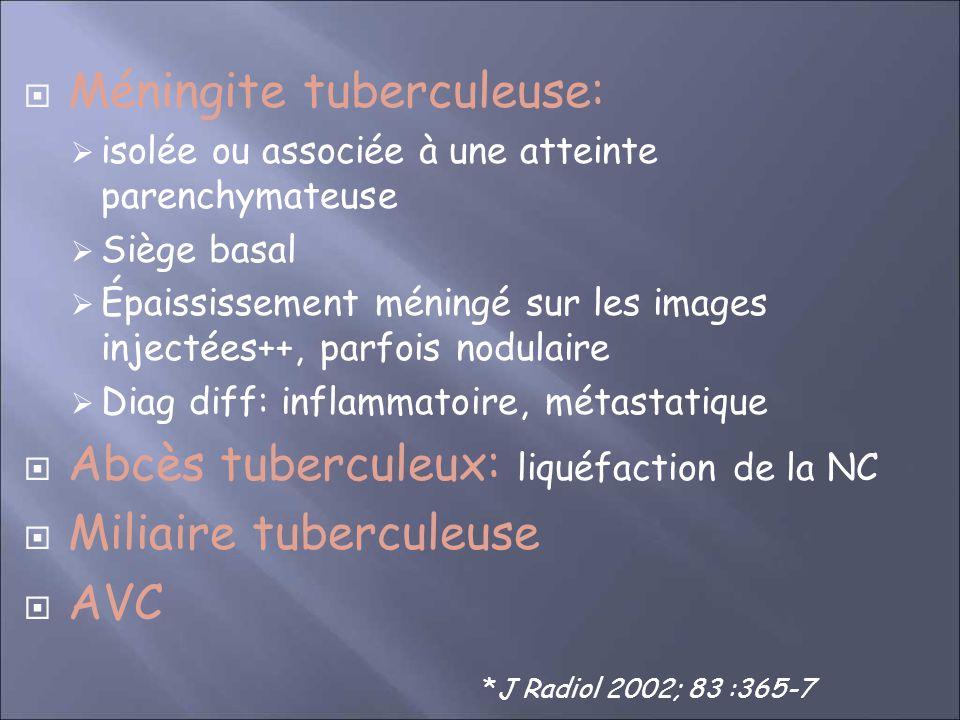 Méningite tuberculeuse: isolée ou associée à une atteinte parenchymateuse Siège basal Épaississement méningé sur les images injectées++, parfois nodulaire Diag diff: inflammatoire, métastatique Abcès tuberculeux: liquéfaction de la NC Miliaire tuberculeuse AVC *J Radiol 2002; 83 :365-7