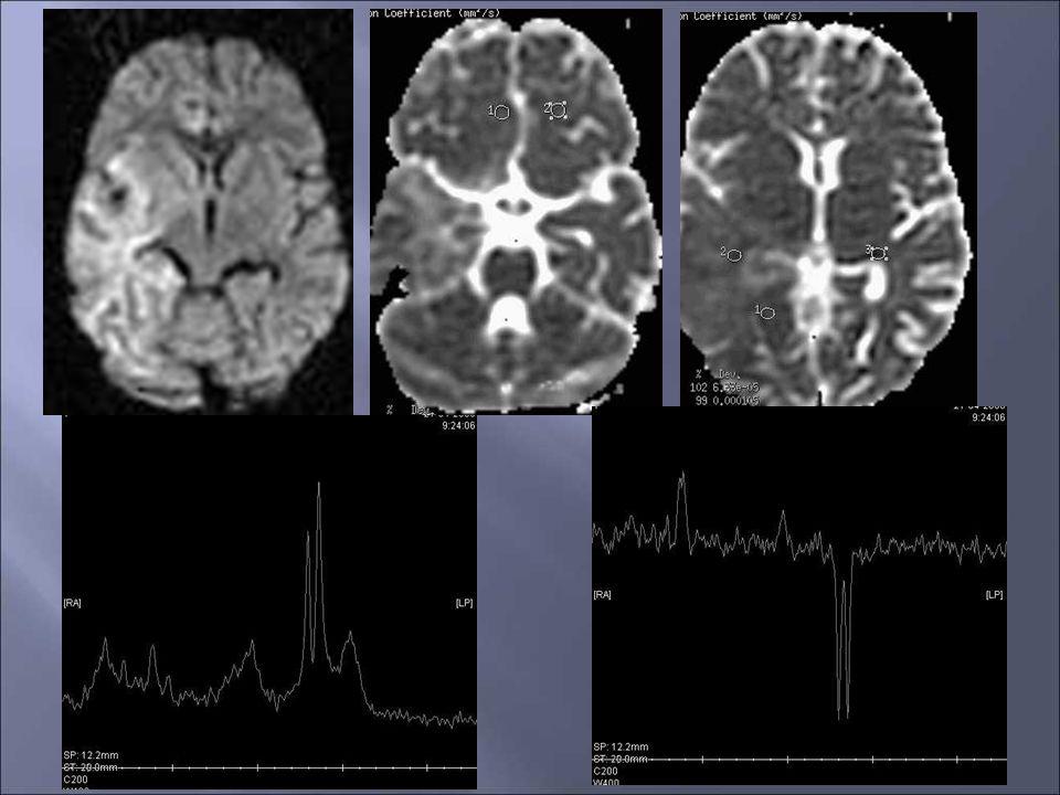 Urgence vitale++ Urgence thérapeutique++ IRM: examen de choix, en urgence FLAIR > T2, T1, EG Diffusion: dgc précoce restriction de la diffusion (œdème cytotoxique) Plus tardivement, ADC (œdème vasogénique) Localisation temporale caractéristique (voie nerveuse/HHV-6) Territoire vasculaire: moins typique * Pediatr Radiol (2007) 37:949-963 *Neuroradiology (2006) 48:875-880