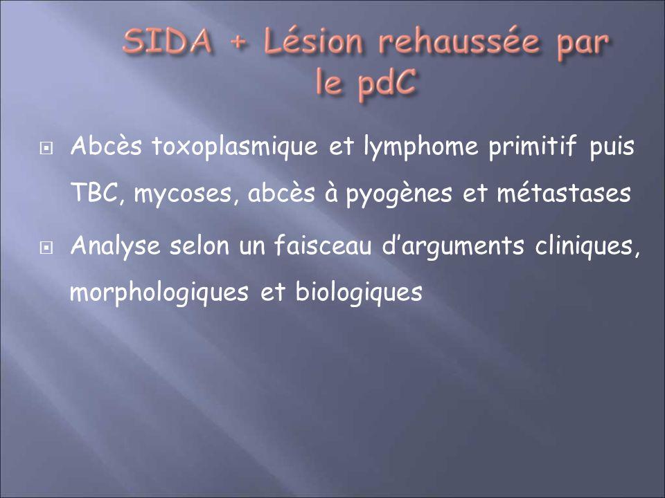 Abcès toxoplasmique et lymphome primitif puis TBC, mycoses, abcès à pyogènes et métastases Analyse selon un faisceau darguments cliniques, morphologiq