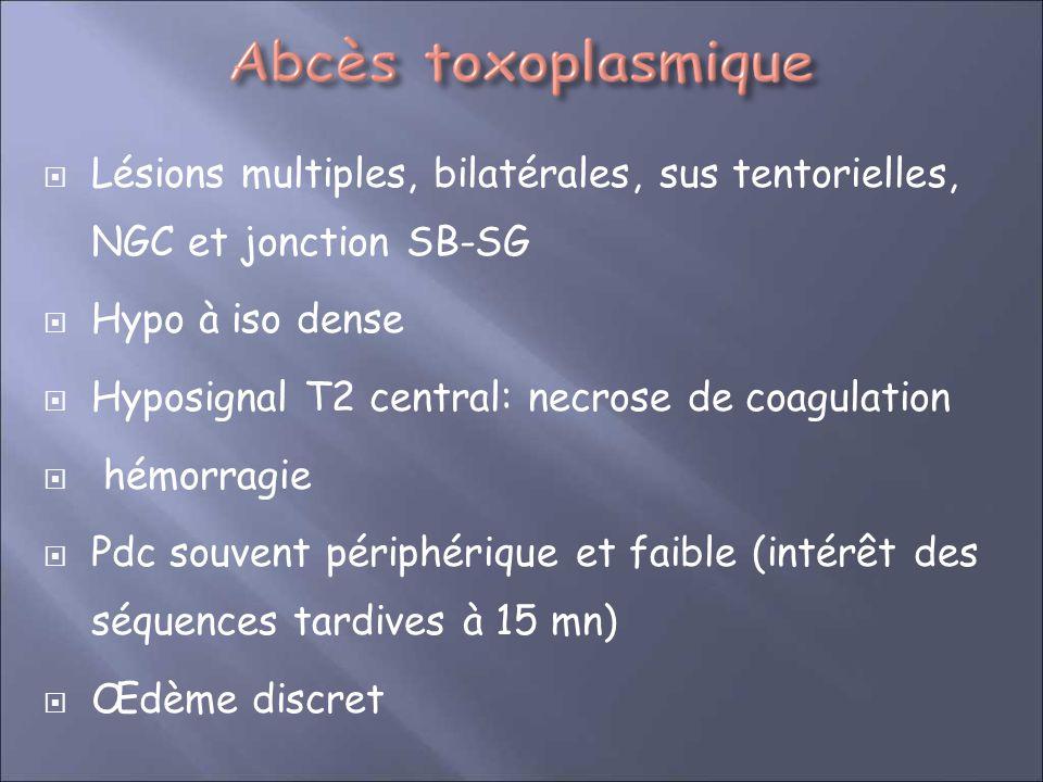 Lésions multiples, bilatérales, sus tentorielles, NGC et jonction SB-SG Hypo à iso dense Hyposignal T2 central: necrose de coagulation hémorragie Pdc