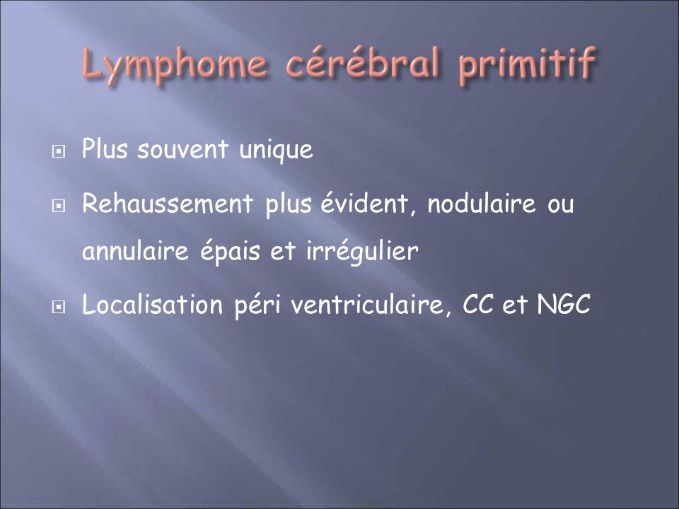 Plus souvent unique Rehaussement plus évident, nodulaire ou annulaire épais et irrégulier Localisation péri ventriculaire, CC et NGC