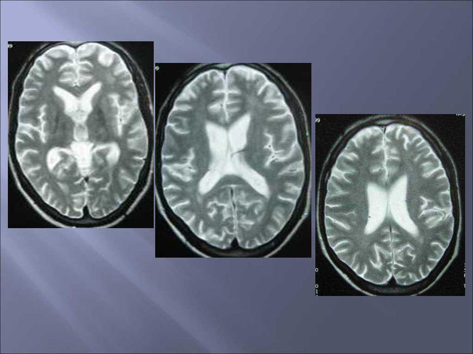 Leucoencéphalopathie du VIH Mise en évidence que par IRM Atteinte demblée diffuse de la SB Atteinte bilatérale et grossièrement symétrique Respecte les fibres arquées LEMP Démyélinisation très intense Sétend en «tache dhuile» sans respecter les fibres en U Limitée en périphérie par le cortex et en profondeur par les NGC Lésions unilaterales ou bilatérales asymétriques Prédilection postérieure, pariéto occipitale ou infratentorielle