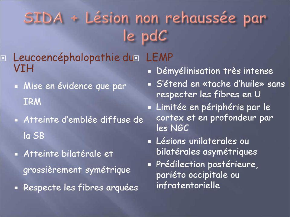 Leucoencéphalopathie du VIH Mise en évidence que par IRM Atteinte demblée diffuse de la SB Atteinte bilatérale et grossièrement symétrique Respecte le