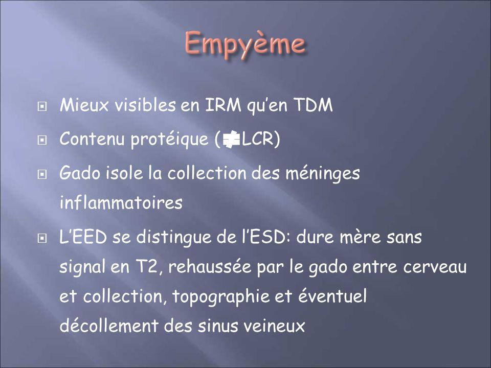 Mieux visibles en IRM quen TDM Contenu protéique ( LCR) Gado isole la collection des méninges inflammatoires LEED se distingue de lESD: dure mère sans