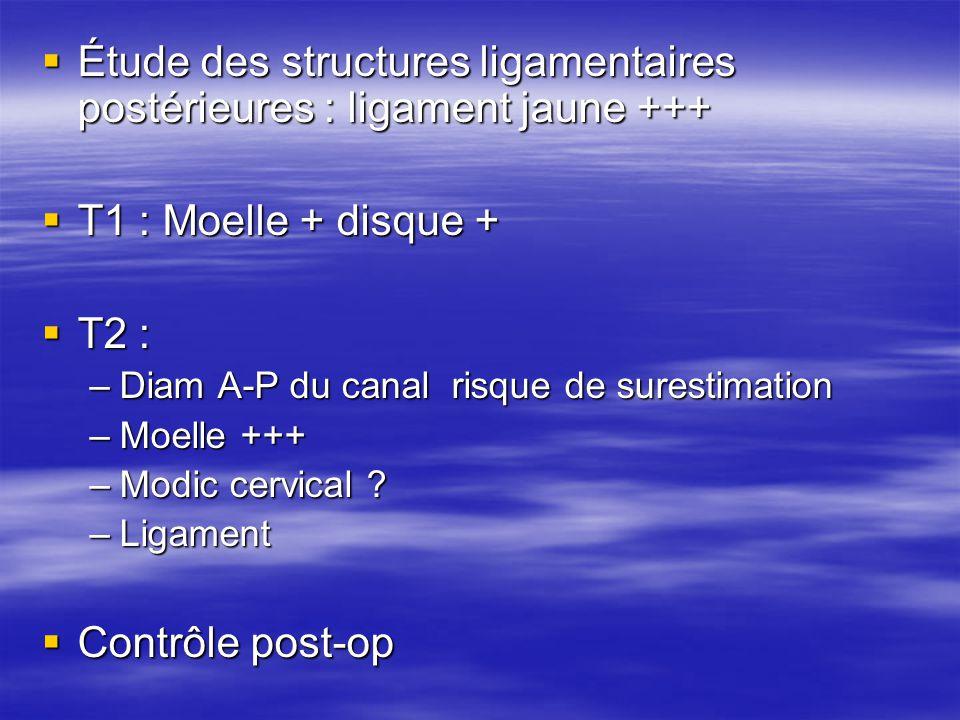 Étude des structures ligamentaires postérieures : ligament jaune +++ Étude des structures ligamentaires postérieures : ligament jaune +++ T1 : Moelle