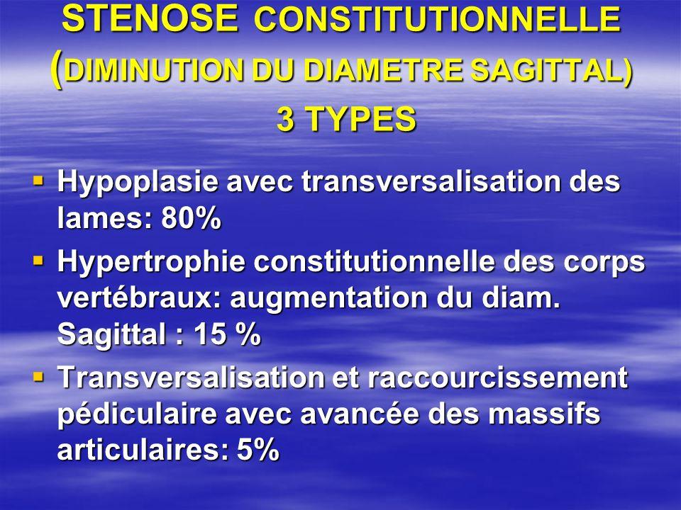 STENOSE CONSTITUTIONNELLE ( DIMINUTION DU DIAMETRE SAGITTAL) 3 TYPES Hypoplasie avec transversalisation des lames: 80% Hypoplasie avec transversalisation des lames: 80% Hypertrophie constitutionnelle des corps vertébraux: augmentation du diam.