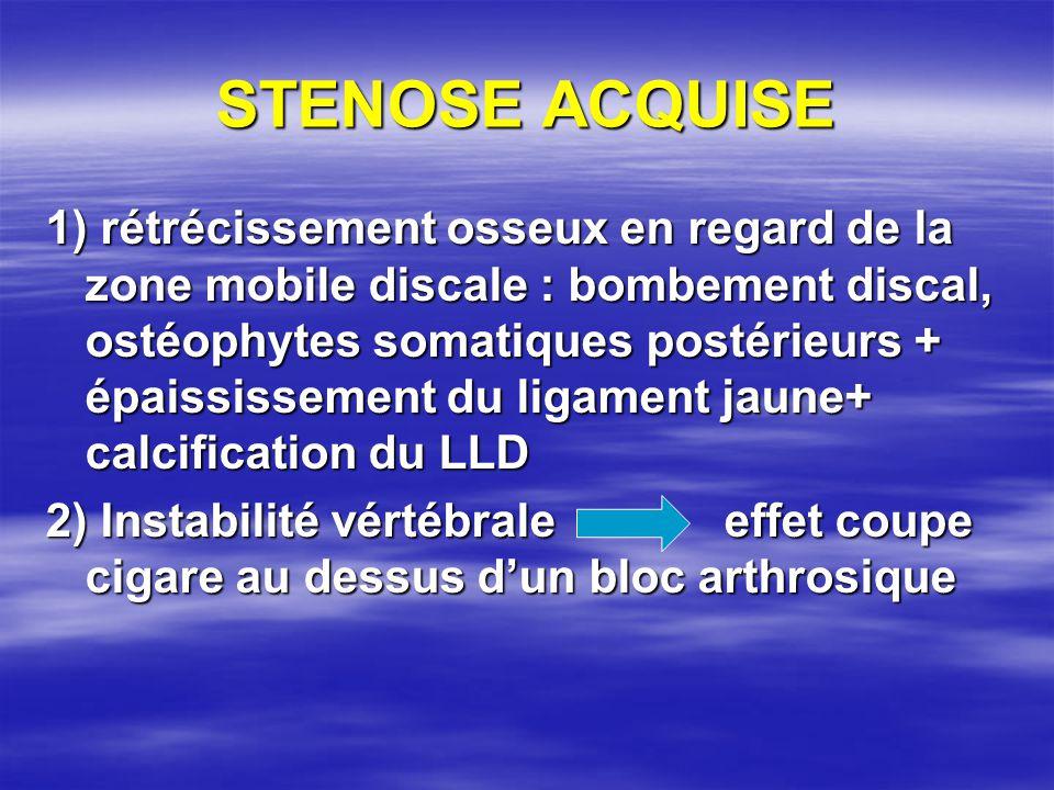 STENOSE ACQUISE 1) rétrécissement osseux en regard de la zone mobile discale : bombement discal, ostéophytes somatiques postérieurs + épaississement d