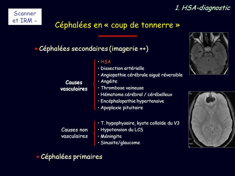 Céphalées en « coup de tonnerre » HSA Dissection artérielle Angiopathie cérébrale aiguë réversible Angéite Thrombose veineuse Hématome cérébral / céré