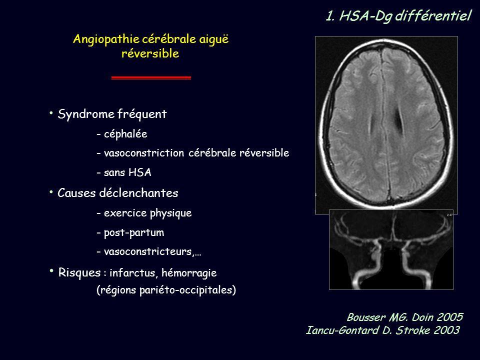 Bousser MG. Doin 2005 Iancu-Gontard D. Stroke 2003 Angiopathie cérébrale aiguë réversible Syndrome fréquent - céphalée - vasoconstriction cérébrale ré