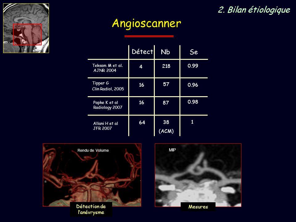 Angioscanner 2. Bilan étiologique Détect Nb Papke K et al Radiology 2007 16 87 0.98 Tipper G Clin Radiol, 2005 16 57 0.96 Se Teksam M et al. AJNR 2004
