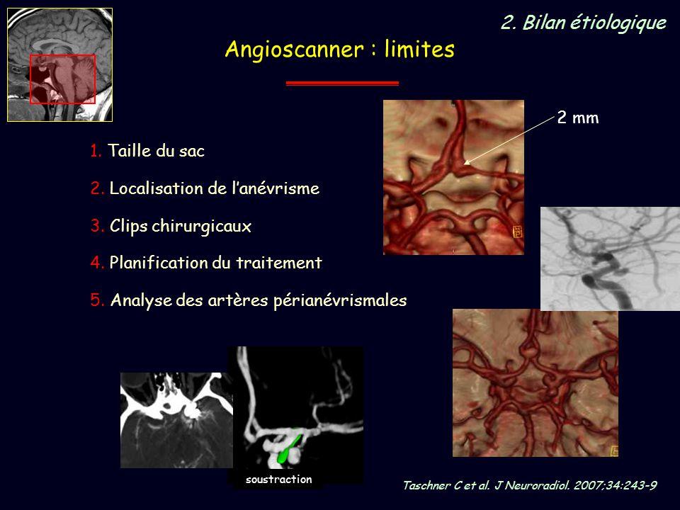 Angioscanner : limites 1. Taille du sac 2. Localisation de lanévrisme 3. Clips chirurgicaux 2 mm soustraction 4. Planification du traitement Taschner