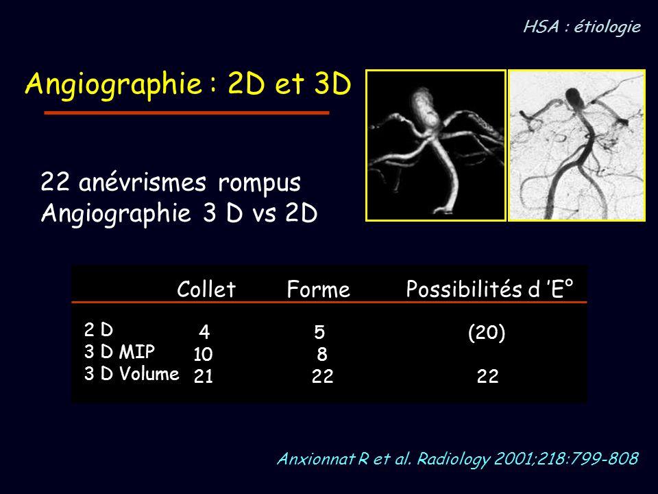 Angiographie : 2D et 3D 22 anévrismes rompus Angiographie 3 D vs 2D Collet Forme Possibilités d E° 4 5 (20) 10 8 21 22 22 2 D 3 D MIP 3 D Volume Anxio