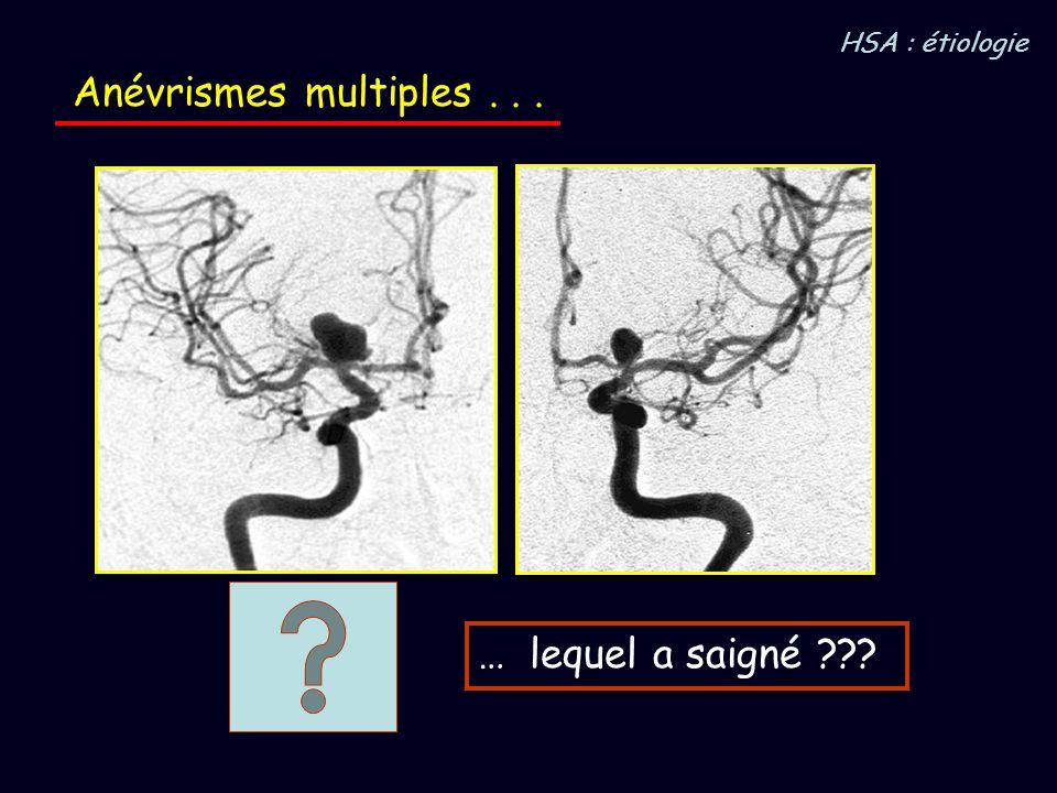Anévrismes multiples... … lequel a saigné ??? HSA : étiologie