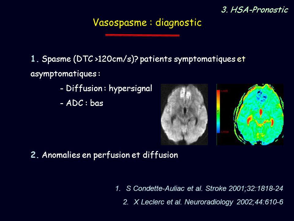 1.S Condette-Auliac et al. Stroke 2001;32:1818-24 2.X Leclerc et al. Neuroradiology 2002;44:610-6 3. HSA-Pronostic Vasospasme : diagnostic 1. Spasme (