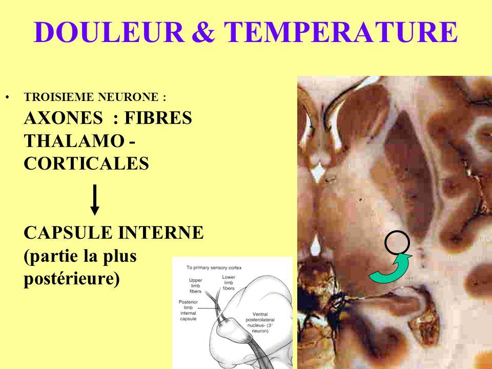 DOULEUR & TEMPERATURE TROISIEME NEURONE : AXONES : FIBRES THALAMO - CORTICALES CAPSULE INTERNE (partie la plus postérieure)