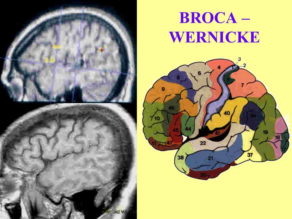 BROCA – WERNICKE