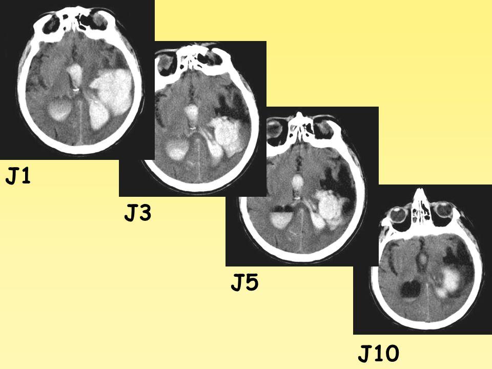 J1 J3 J5 J10