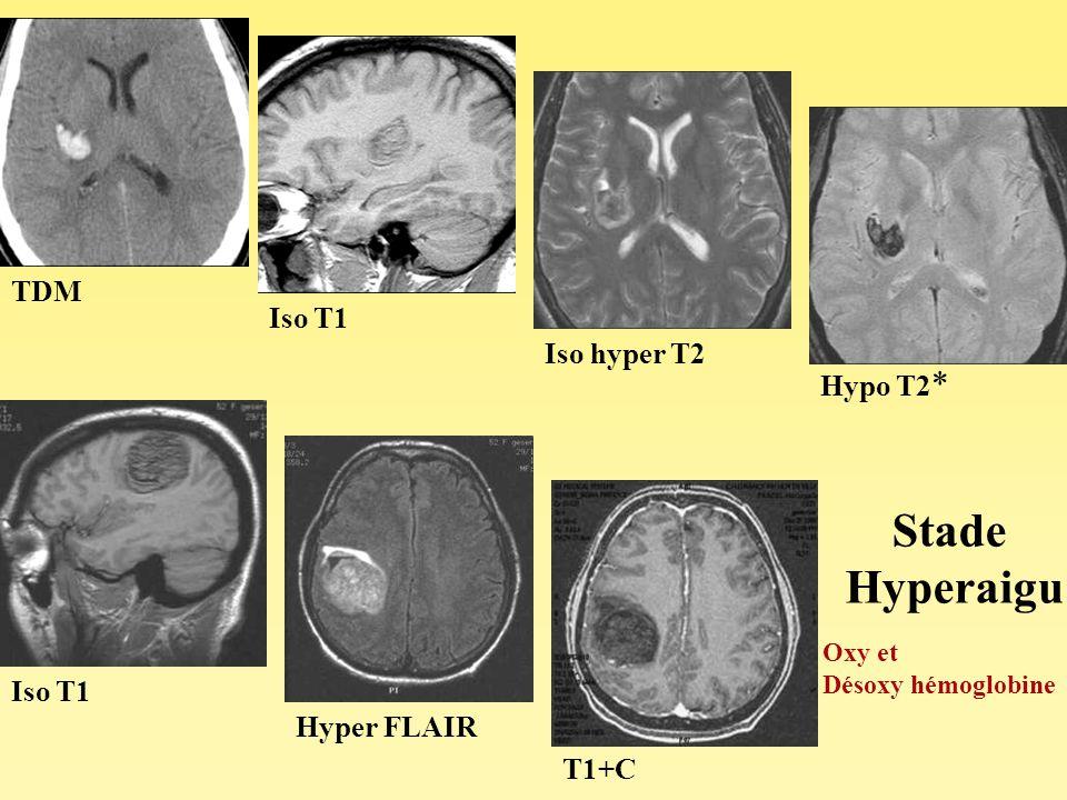 TDM Iso T1 Iso hyper T2 Hypo T2 * Iso T1 Hyper FLAIR T1+C Stade Hyperaigu Oxy et Désoxy hémoglobine