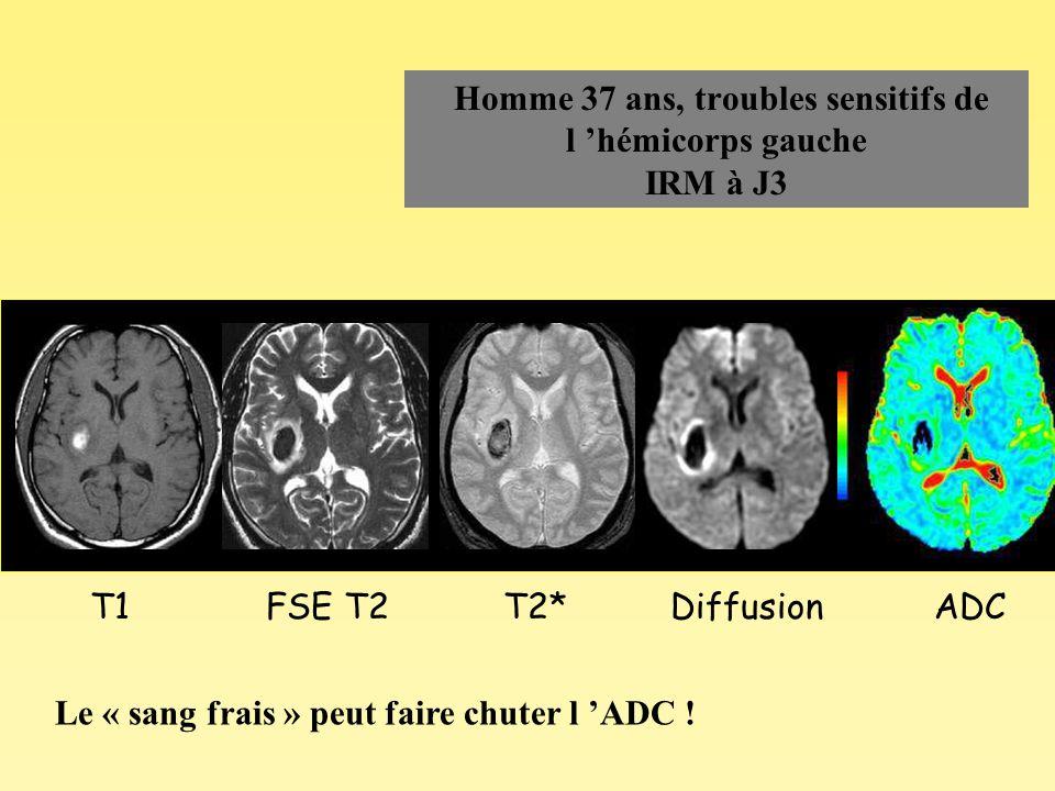 Homme 37 ans, troubles sensitifs de l hémicorps gauche IRM à J3 T1ADCDiffusionT2*FSE T2 Le « sang frais » peut faire chuter l ADC !