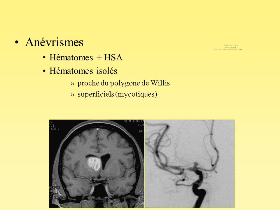 Anévrismes Hématomes + HSA Hématomes isolés »proche du polygone de Willis »superficiels (mycotiques)