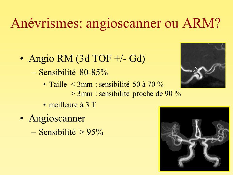 Anévrismes: angioscanner ou ARM? Angio RM (3d TOF +/- Gd) –Sensibilité 80-85% Taille 3mm : sensibilité proche de 90 % meilleure à 3 T Angioscanner –Se