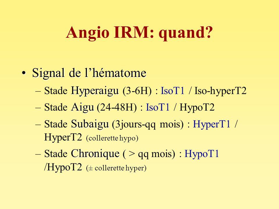 Angio IRM: quand? Signal de lhématomeSignal de lhématome Hyperaigu –Stade Hyperaigu (3-6H) : IsoT1 / Iso-hyperT2 Aigu –Stade Aigu (24-48H) : IsoT1 / H