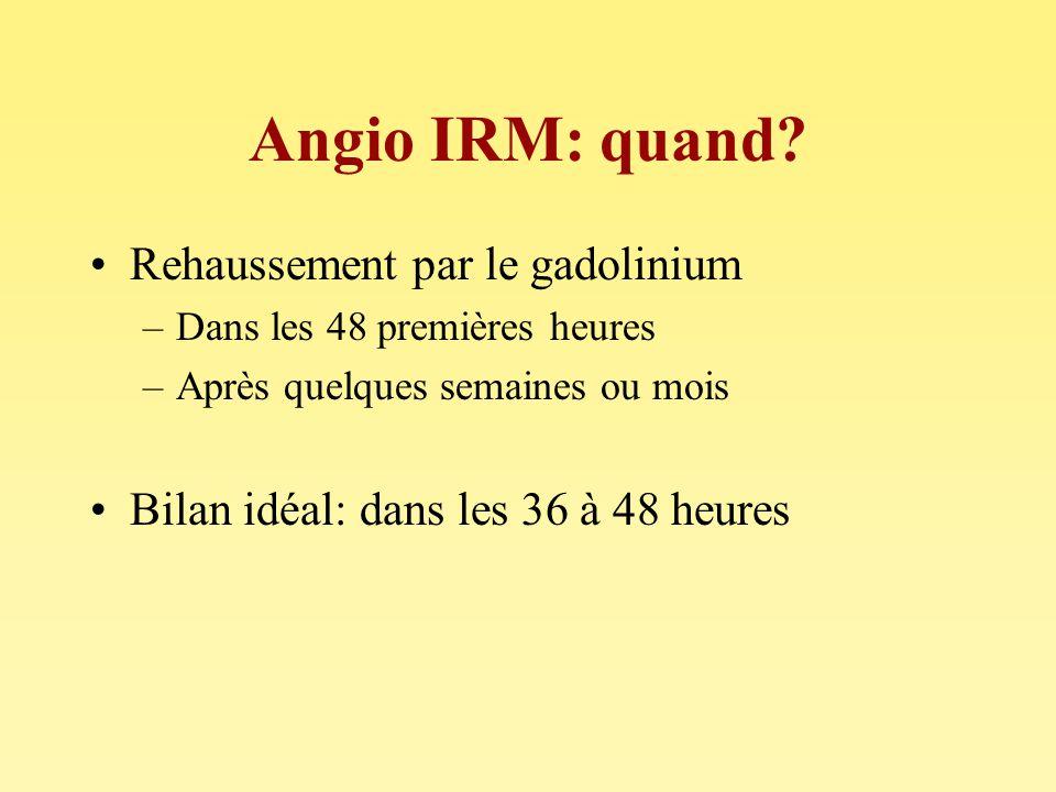 Angio IRM: quand? Rehaussement par le gadolinium –Dans les 48 premières heures –Après quelques semaines ou mois Bilan idéal: dans les 36 à 48 heures