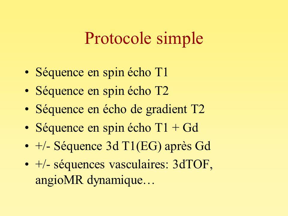 Protocole simple Séquence en spin écho T1 Séquence en spin écho T2 Séquence en écho de gradient T2 Séquence en spin écho T1 + Gd +/- Séquence 3d T1(EG