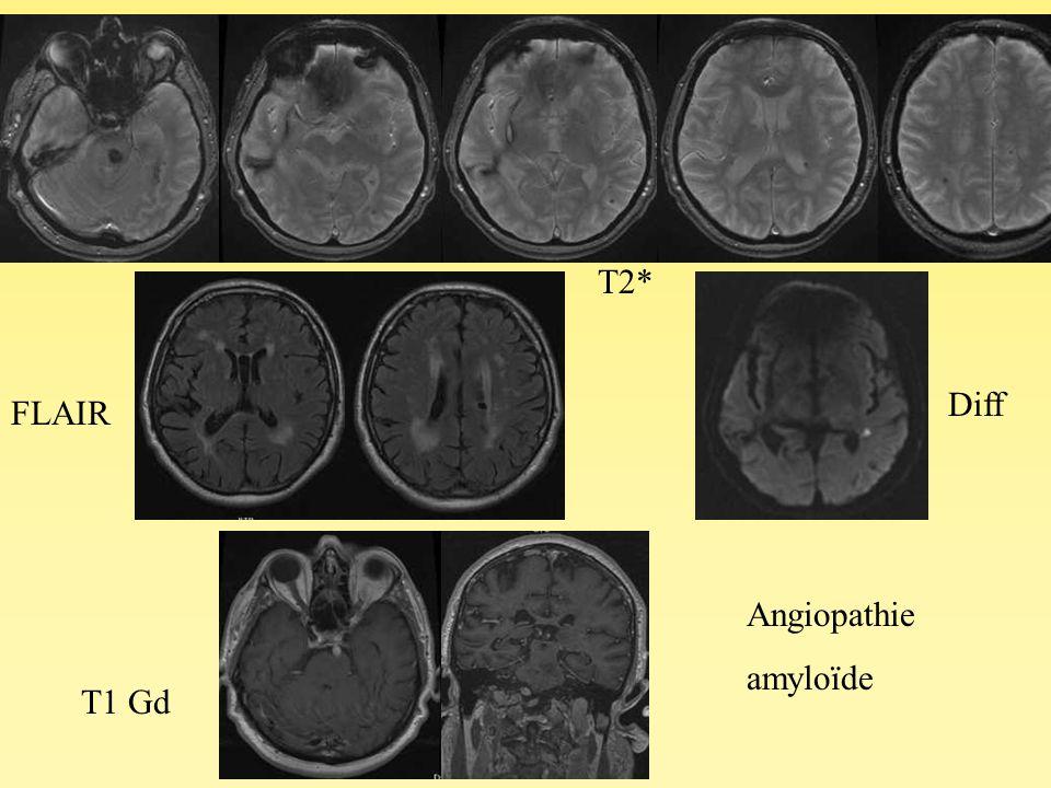 Angiopathie amyloïde Diff T1 Gd FLAIR T2*