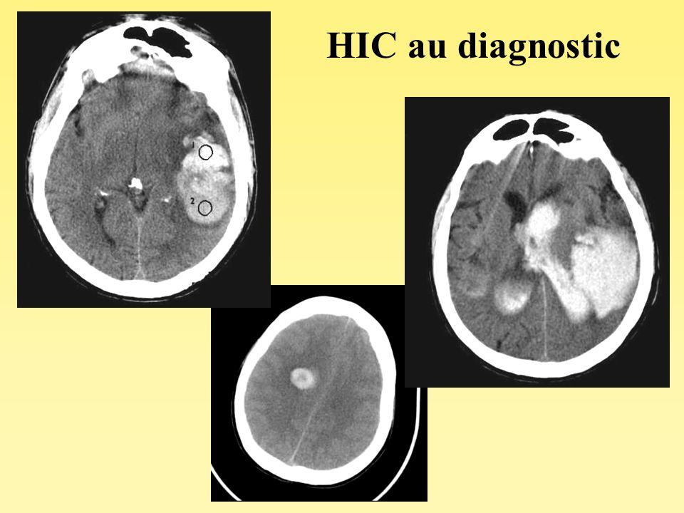 Séméiologie TDM de lhématome (de H0 à H48) - Cas particuliers - HIC iso ou hypodense : Anémie (<10g dHb) HIC hétérogène : –caillot en voie de formation –fragmentation du caillot –saignement itératif –niveau liquidien (sang coagulé (hyperD) / sang non coagulé (isoD) ) => troubles de la coagulation