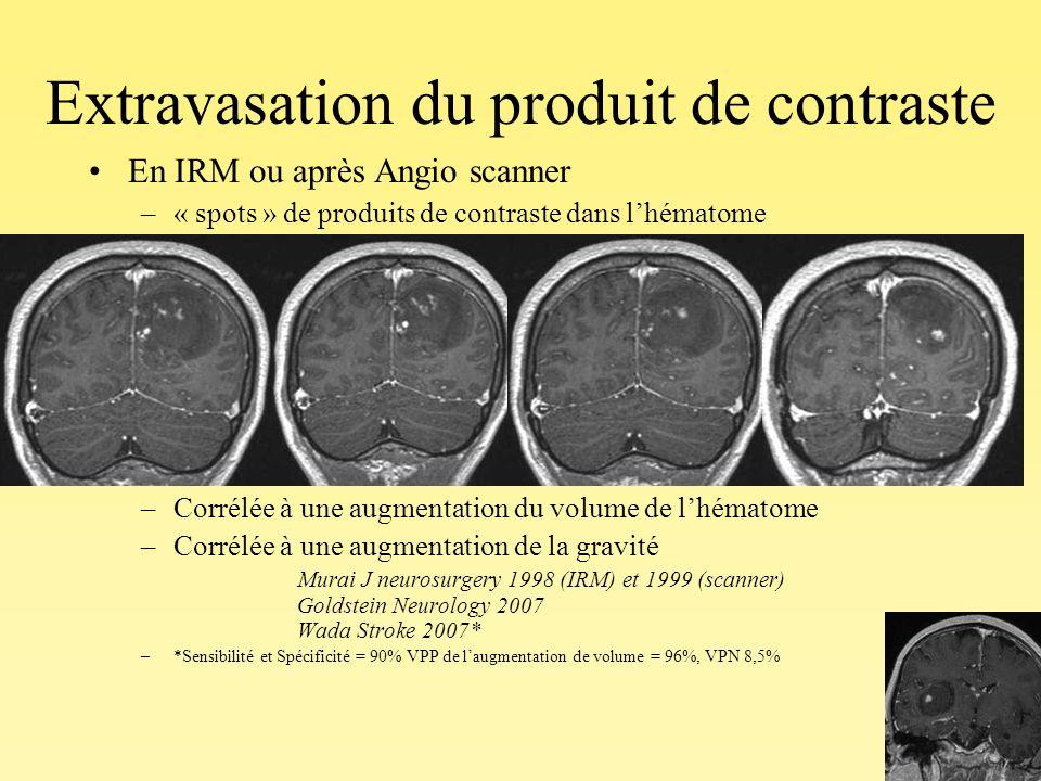 Extravasation du produit de contraste En IRM ou après Angio scanner –« spots » de produits de contraste dans lhématome –33 à 56% des cas dans les 3 pr
