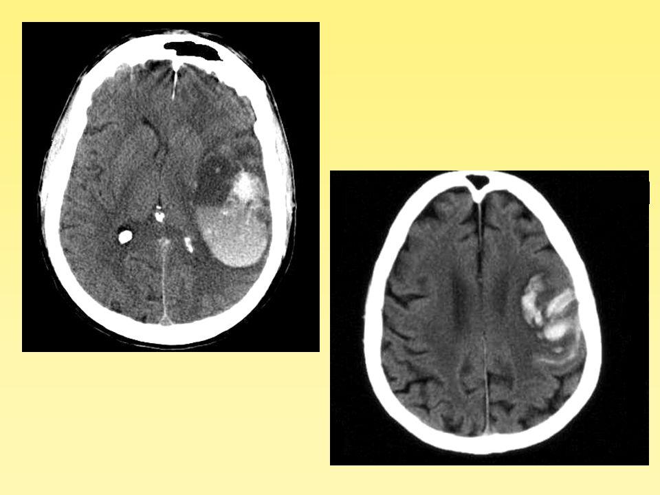 Conclusions Diagnostic positif –Phase aigue: scanner = IRM –Phase tardive, séquelles, transformation hémorragiques des AVCI: IRM > scanner Diagnostic étiologique –IRM précoce > scanner Pronostic –Scanner = IRM