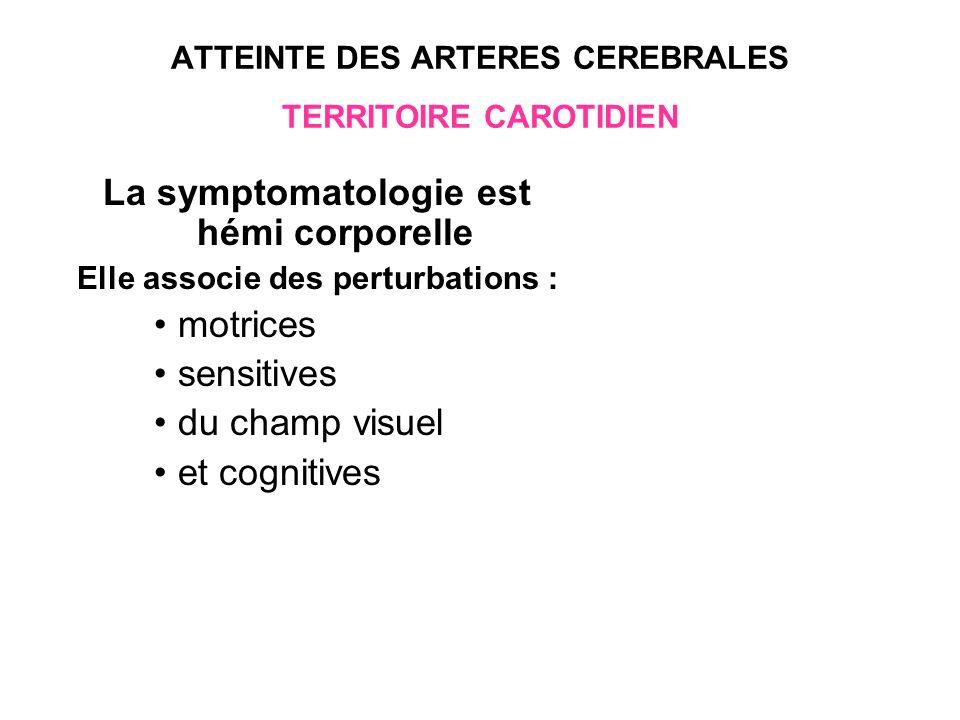ATTEINTE DES ARTERES CEREBRALES TERRITOIRE CAROTIDIEN CEREBRALE MOYENNE 70 % des infarctus carotidiens peut être Totale ou partielle
