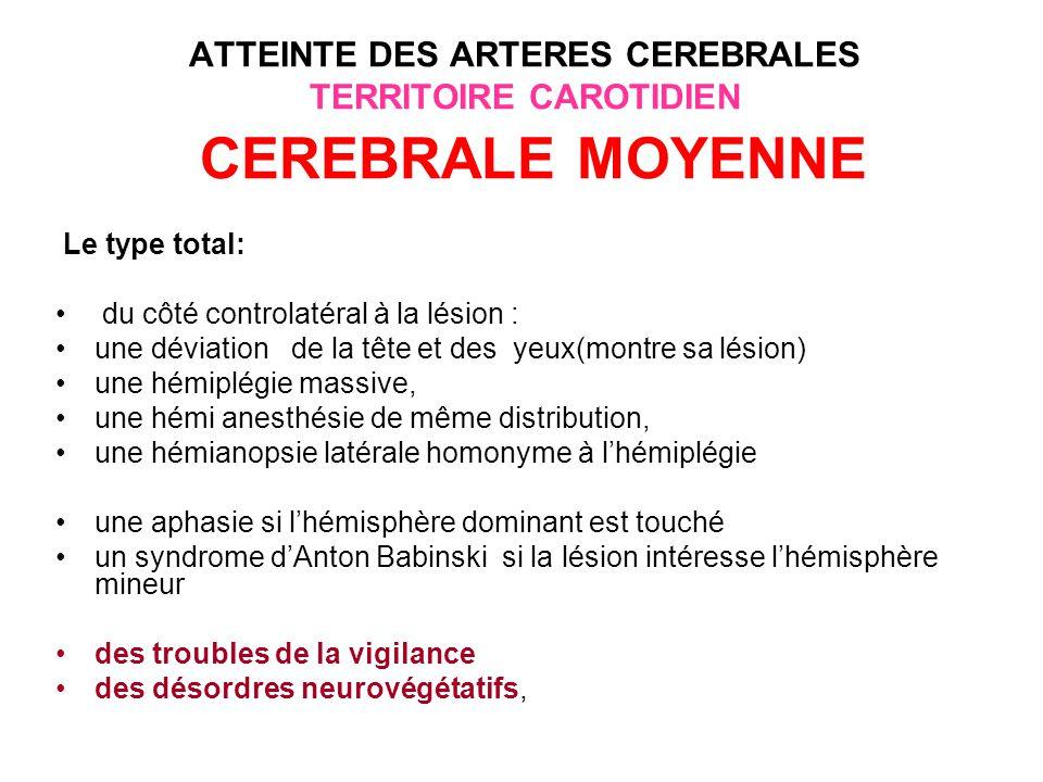 ATTEINTE DES ARTERES CEREBRALES TERRITOIRE CAROTIDIEN CEREBRALE MOYENNE Le type superficiel antérieur (territoire des artères ascendantes): du côté controlatéral à la lésion: une hémiplégie à prédominance brachio-faciale, une hémianesthésie de même distribution, une aphasie motrice(aphasie de Broca) si lésion de lhémisphère dominant avec souvent une agraphie.