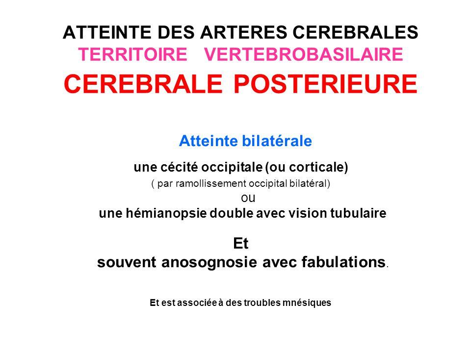 ATTEINTE DES ARTERES CEREBRALES TERRITOIRE VERTEBROBASILAIRE CEREBRALE POSTERIEURE Territoire profond (souffrance thalamique: atteinte du noyau ventro postéro latéral) Le syndrome de Dejerine-Roussy (ou syndrome thalamique) associe: une hémianesthésie totale non dissociée touchant la face, une main instable ataxique (astérixis), une hémi parésie régressive, une hyper pathie tardive ( douleur thalamique)